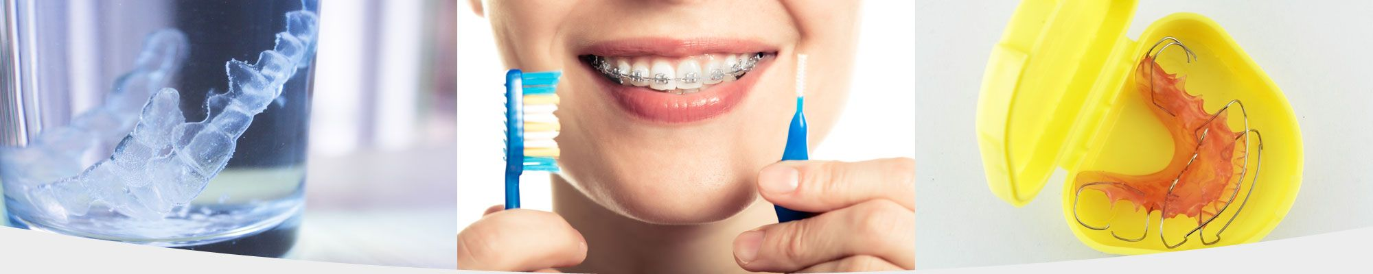 Examples of taking care of dental braces