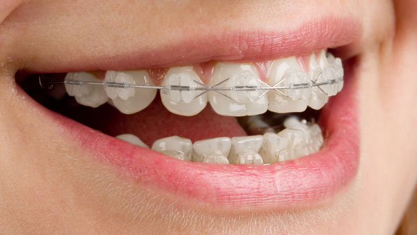 Woman smiling wearing ceramic braces