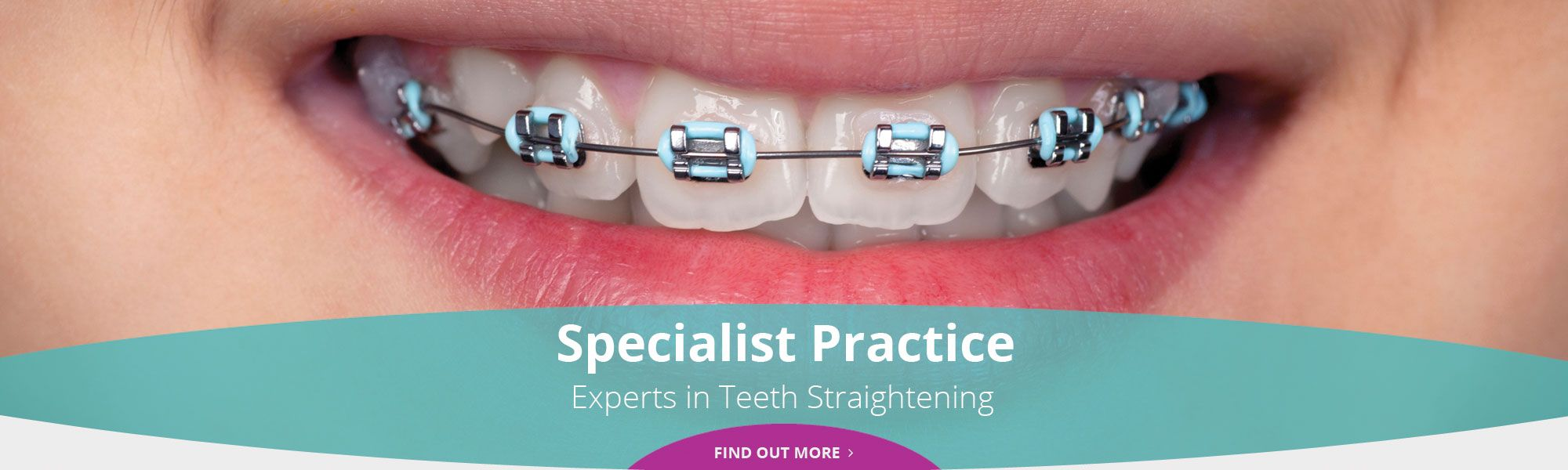 Specialist Practice - Experts in Teeth Straightening - Find out more