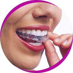 Lady with Invisalign brace