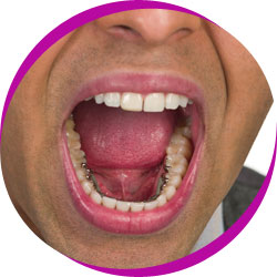 Middle aged man wearing lingual braces