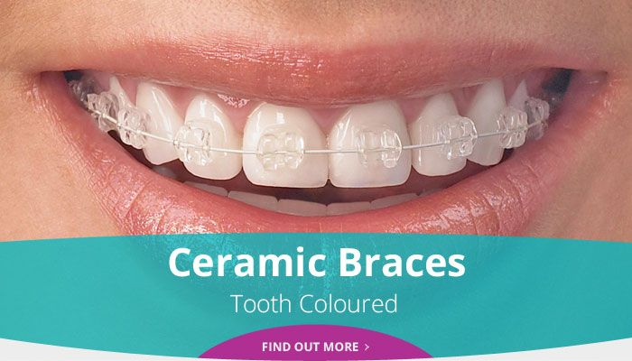 Ceramic Braces - Tooth Coloured - Find out more