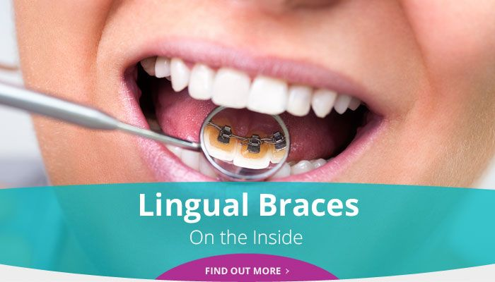 Lingual Braces - On the Inside - Find out more